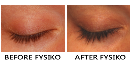 before and after fysiko