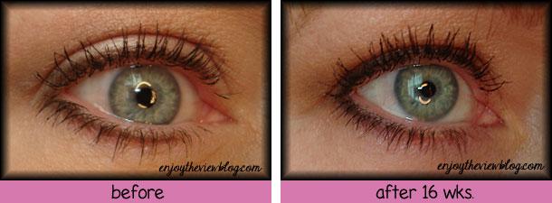 enjoytheviewblog-before-after-2