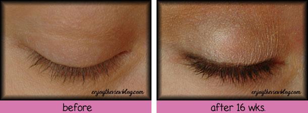 enjoytheviewblog-before-after-4