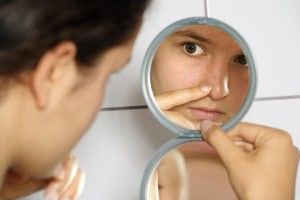 6 tips how to clear acne